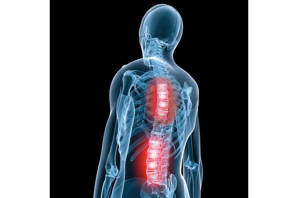 zaburzeń układu mięśniowo-szkieletowego
